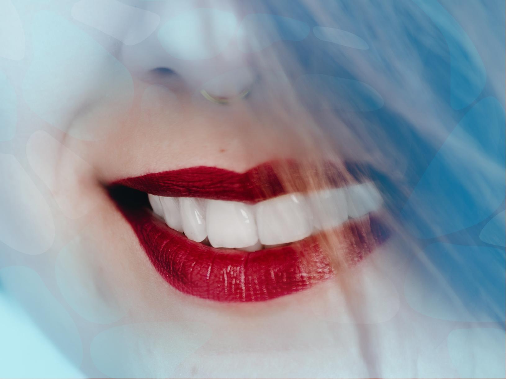 Facetas de Porcelana e Lentes de Contato Dentais