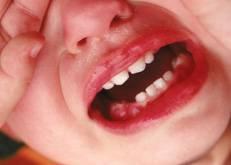 Dentes de leite servirão no tratamento com células-tronco
