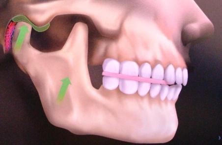 Ranger os dentes pode estar associado à doença respiratória