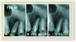 Tratamento de Canal - Endodontia