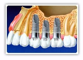 Implantes dentários curtos são alternativa à enxertos ósseos