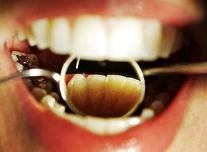 Cáries podem ser contagiosas, diz pesquisa