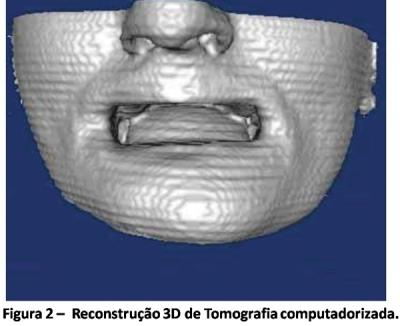A reconstrução em 3D nas cirúrgias bucais