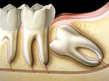 Saiba quando e porque fazer a cirurgia do dente do siso