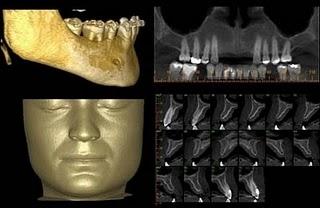 imagem 3D permite planejamento preciso e  visualização de resultados cirúrgicos