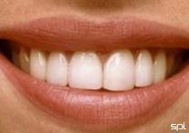 Estudo revela a fórmula do sorriso perfeito