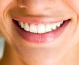 Clareamento dental sem orientação pode causar até queda dos dentes