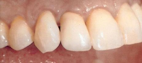 Solução para repor os dentes sem enxerto ósseo