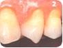 Dentes sensiveis:saibas suas causas e o seu tratamento