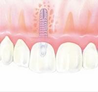 Hipertensos e diabéticos podem fazer implantes dentários?