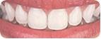 Estética dental: saiba quais são os métodos para se manter um belo sorriso