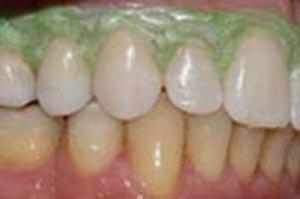 Alimentos e bebidas mancham os dentes em longo prazo.