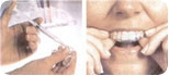 Conheça os cuidados durante o clareamento dental e os riscos desse tratamento