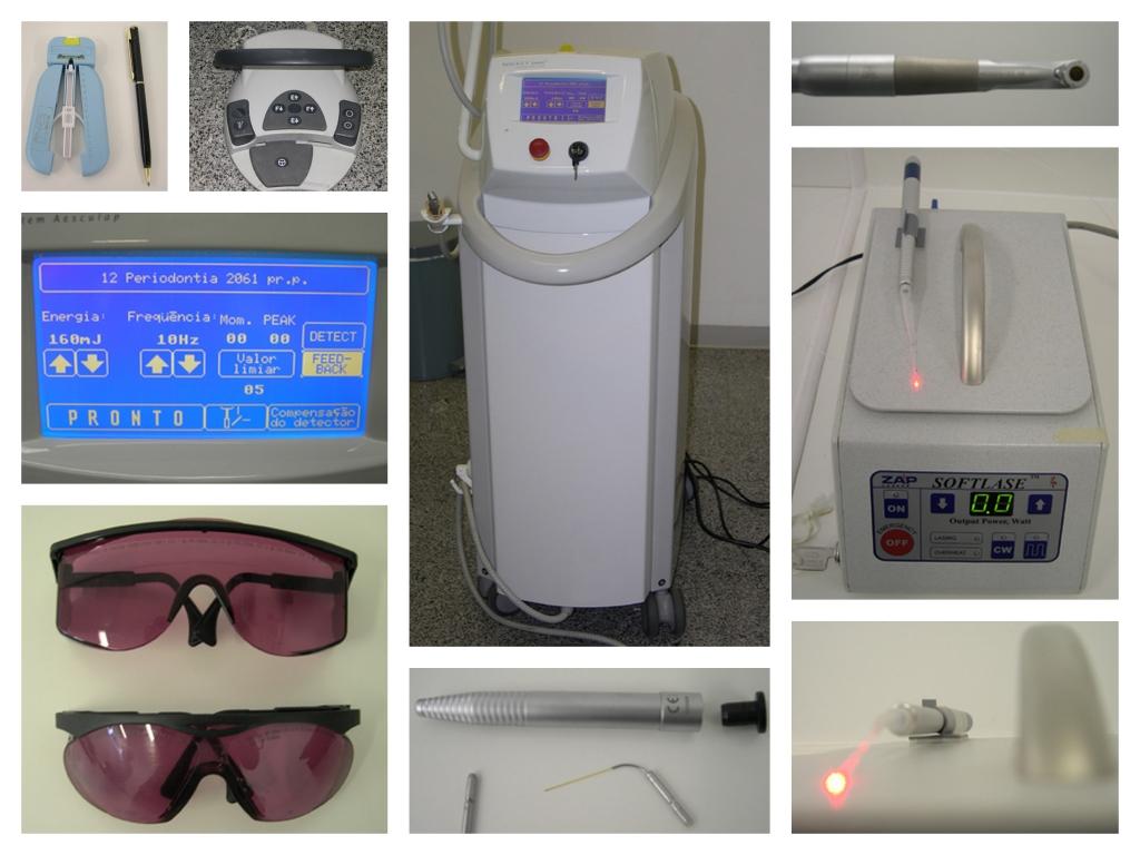 Odontologia: Laser de alta potência auxilia o tratamento de canal