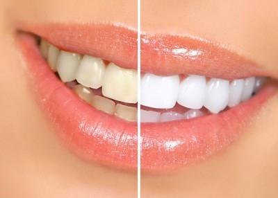 Bleachorexia- vício em clareamento dental
