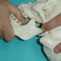 Dores de cabeça, coluna, ouvido e estalos podem ser causados por problemas mandíbula