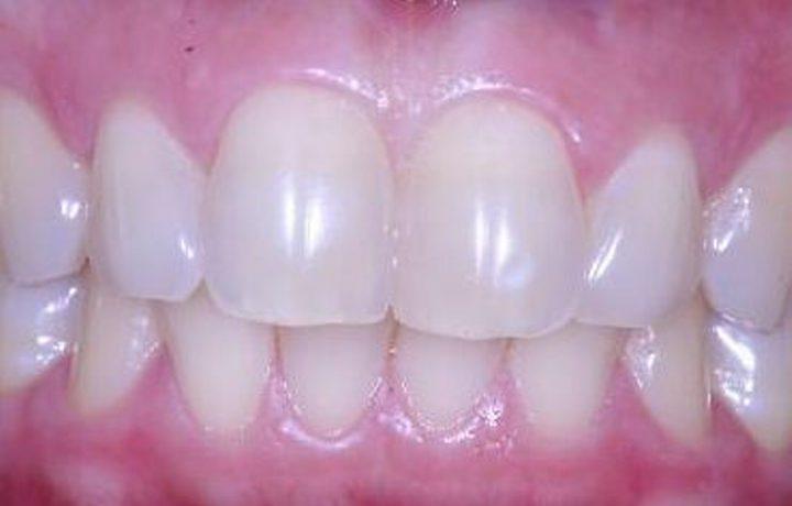 Clareamento Dental: Riscos e Benefícios