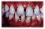 Problemas periodontais podem afetar a fertilidade feminina