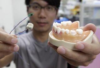 Cientistas de Taiwan apresentam protótipo de 'dente inteligente'