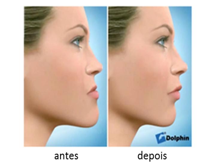 Cirurgia Ortognática: O tratamento que corrige as deformidades ósseas da face.