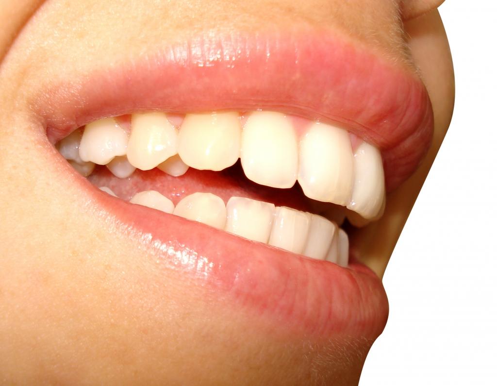 Mau hálito pode ser sinal de doença bucal infeciosa