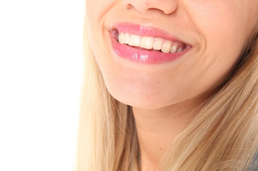 É melhor clarear os dentes em casa ou no consultório?