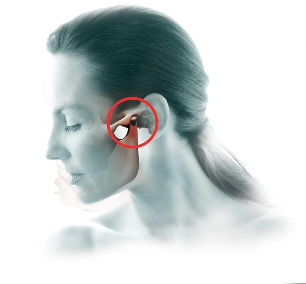 Distúrbios da Articulação Têmporo-Mandibular (ATM)