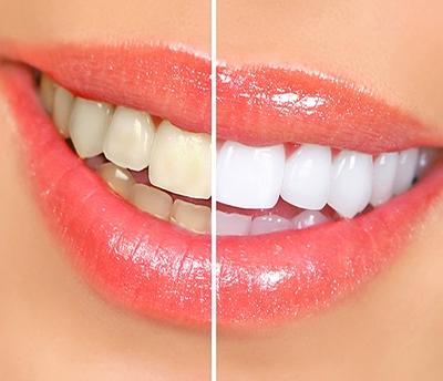 Café, refrigerante, bebidas alcoólicas e cigarro podem escurecer os dentes