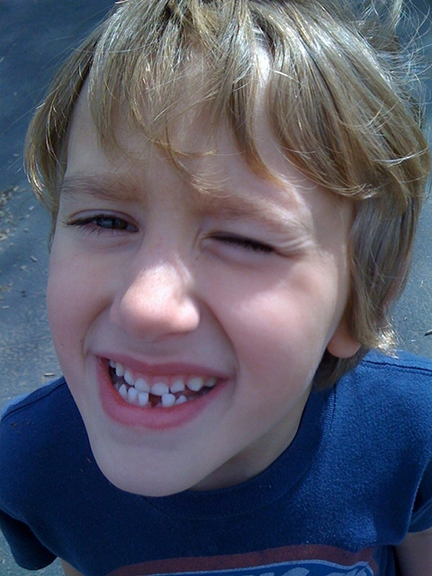 O que fazer quando o dente do seu filho quebra ou cai